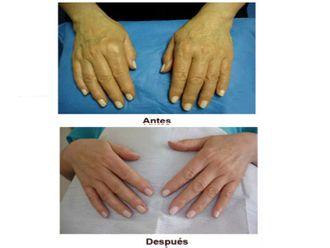 Manchas de la piel - 497852