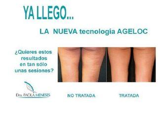 Tratamiento celulitis - 597805