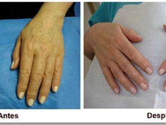 Manchas de la piel - 597808
