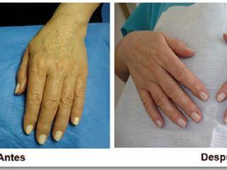 Antes y despues de rejuvenecimiento de manos