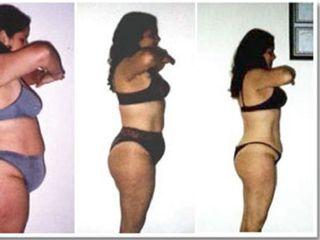 Antes y despues de Adiposidad localizada y modelación corporal