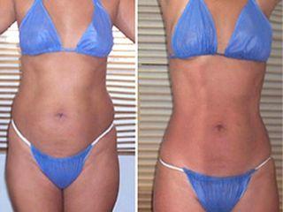 Antes y despues de mesoterapía corporal