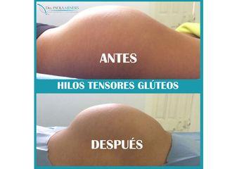 HILOS TENSORES GLÚTEOS