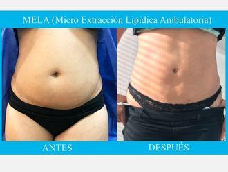Liposucción - 638969