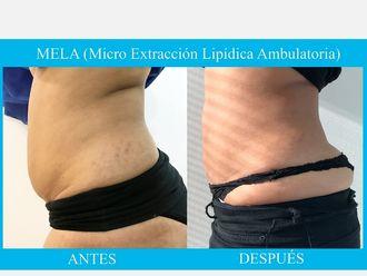 Liposucción - 638970