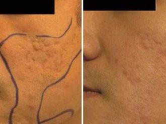 Borrar cicatrices-272027