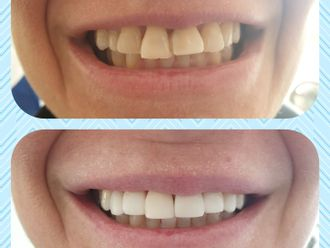 Implantes dentales-648250