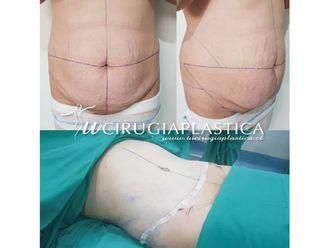 Abdominoplastia - 643719