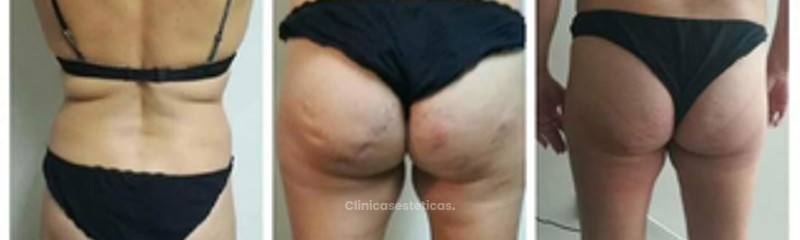 Eva Dermoestética