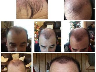 Alopecia - 638266