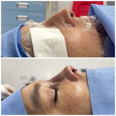 Rinoplastia - Dr. Carlos Figueroa R