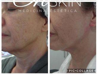 Rejuvenecimiento facial - 634869