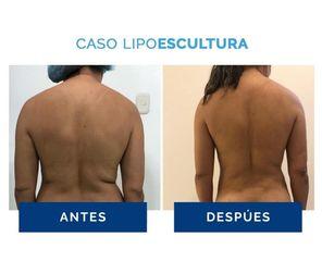 Liposucción - Clínica Estética Avanzar