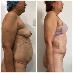 Abdominoplastia - Clínica Estética Avanzar