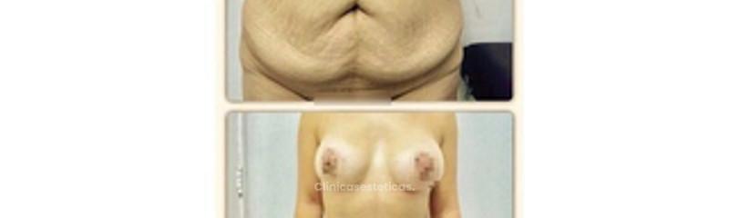 Abdominoplastía y Pexia Reductiva