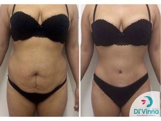 Abdominoplastia - 636349