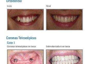 Ortodoncia - 575160