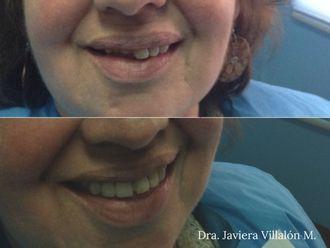 Prótesis dentales - 620163