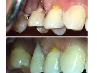 Endodoncia - 620165