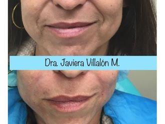Rejuvenecimiento facial - 661015