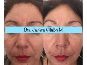 Rejuvenecimiento facial - 661017