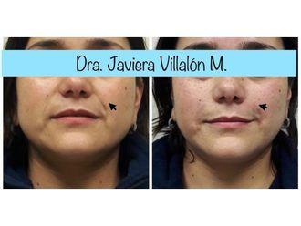 Rejuvenecimiento facial - 661018