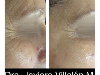 Rejuvenecimiento facial - 661024