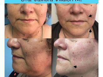 Rejuvenecimiento facial - 661029