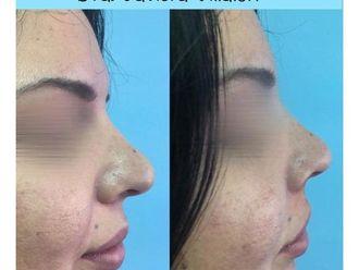 Rejuvenecimiento facial - 661030