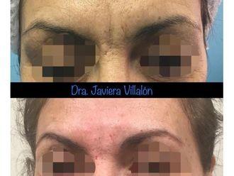 Rejuvenecimiento facial - 661032