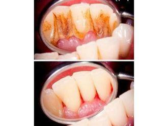Limpieza dental-792698