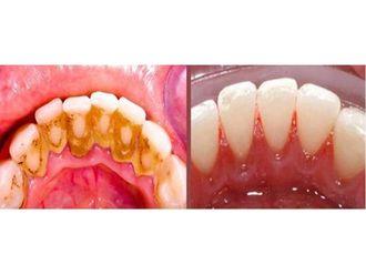 Limpieza dental-792699