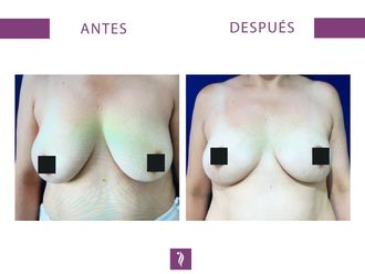 Aumento mamario - 633627