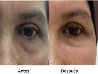 Tratamiento de bolsas en los ojos - 501491