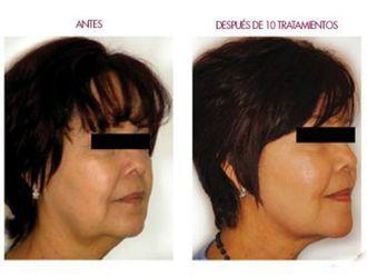 Rejuvenecimiento facial-498288