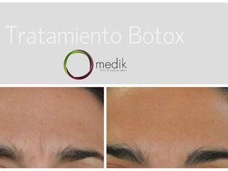 collage Botox