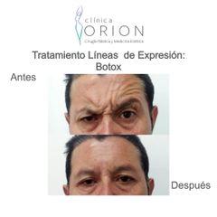 Bótox - Clínica Orion
