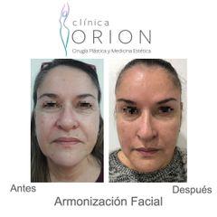 Botox - Hilos Tensores - Acido Hialuronico - Clínica Orion