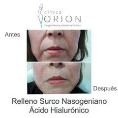 Ácido hialurónico - Clínica Orion