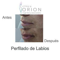 Aumento de labios - Clínica Orion