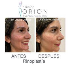Rinoplastia Estetica Obl Dr CC - Clínica Orion