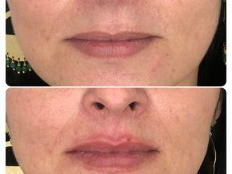 Aumento de labios-790612