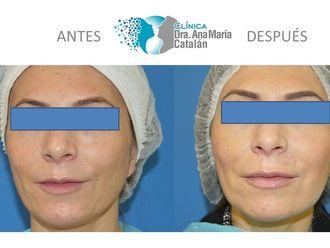 Aumento de labios-628489