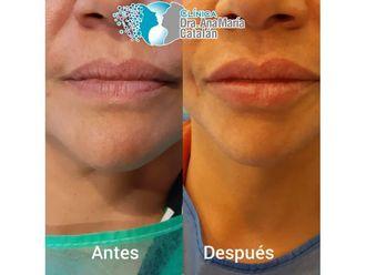 Aumento de labios-644980