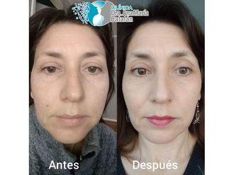 Rejuvenecimiento facial-644981