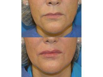 Aumento de labios-738595