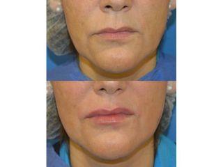 Aumento de labios - Dra. Ana María Catalan Terraza