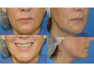 Aumento de labios-738596