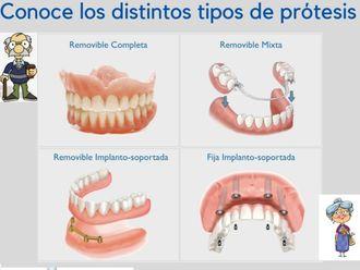 Prótesis dentales - 624893