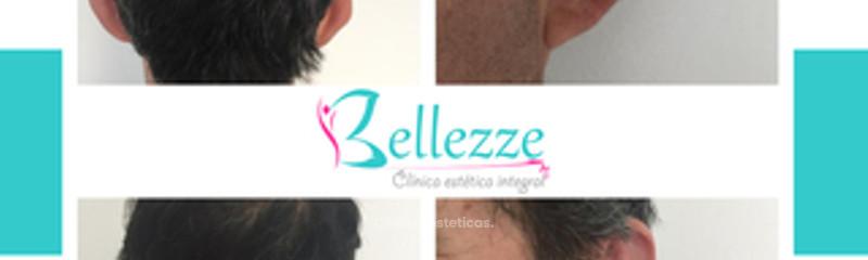Clinica Bellezze